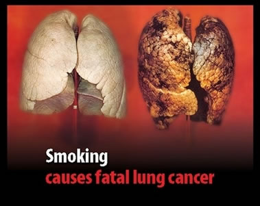 And black lung disease (or pneumoconiosis) is a real disease. Coal